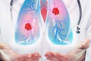 Prof. Dr. Özlem Er: nu neglijați aceste 10 simptome care pot anunța un cancer de plămâni