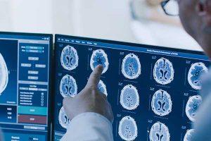 Prof. Dr. Ufuk Abacioglu: rolul radioterapiei în tratarea cu succes a cancerului